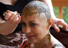 15 راه برای حمایت از فردی که به سرطان مبتلاست