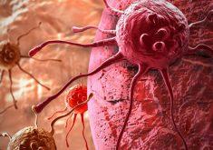 هرآنچه که باید درباره تومور سرطانی خوش خیم بدانید