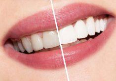 9 نکته برای داشتن یک لبخند زیبای هالیوودی