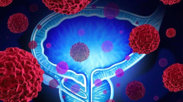 حقایق مهم و ترسناک درباره سرطان پروستات