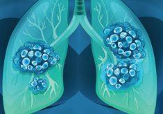 همه چیز درباره سرطان ریه، مرگبارترین سرطان مشترک زنان و مردان
