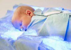 همه چیز درباره زردی نوزاد تازه به دنیا آمده و درمان آن